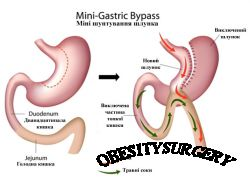 Мини шунтирование желудка (Mini gastric bypass, MGB)