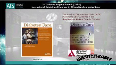 Нові стандарти лікування цукрового діабету ІІ типу - 2017