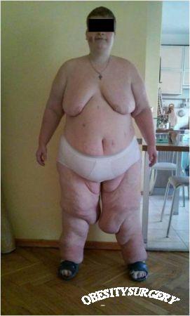 Синдром Прадера-Віллі і суперожиріння (ІМТ=72). Лапароскопічне дистальне шунтування шлунка з одним анастомозом.